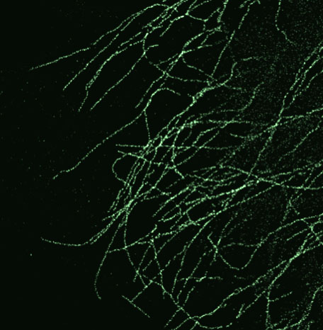 actin labeled with Alexa 488 under gSTED