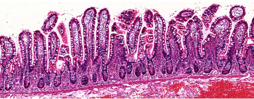 image of the gut